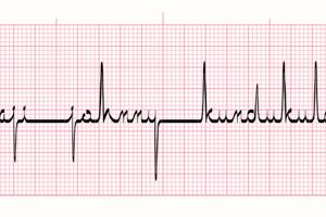 ECG saji
